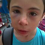 Niño accidentado en el Parque Magallenes